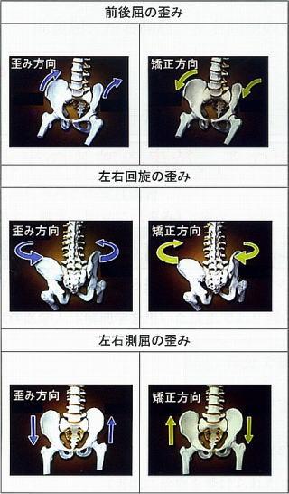 骨盤の歪みか方の種類 骨盤の前後屈の歪み 骨盤の左右バランスの歪み 左右側屈の歪み