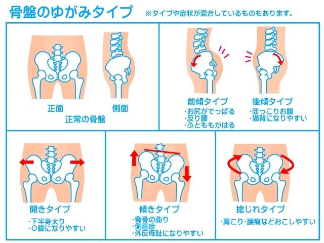 骨盤のゆがみのタイプ・前傾タイプ、後傾タイプ・開きタイプ・傾きタイプ・ねじれタイプで骨盤の歪みが分かれます