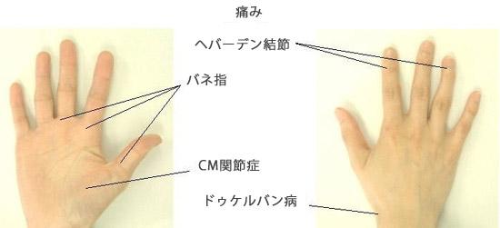腱鞘炎の痛みが出るところ ばね指・CM関節炎・ドゲルバン病・へ-バーデン結節
