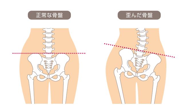 正常な骨盤・左右に歪んだ骨盤