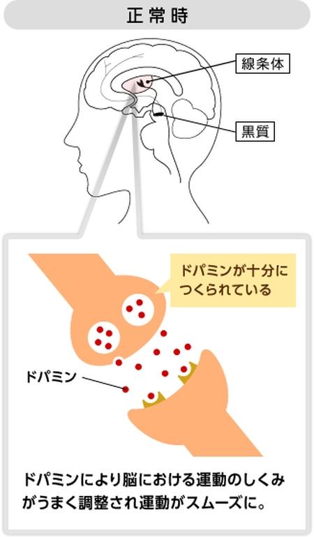 パーキンソン病-2
