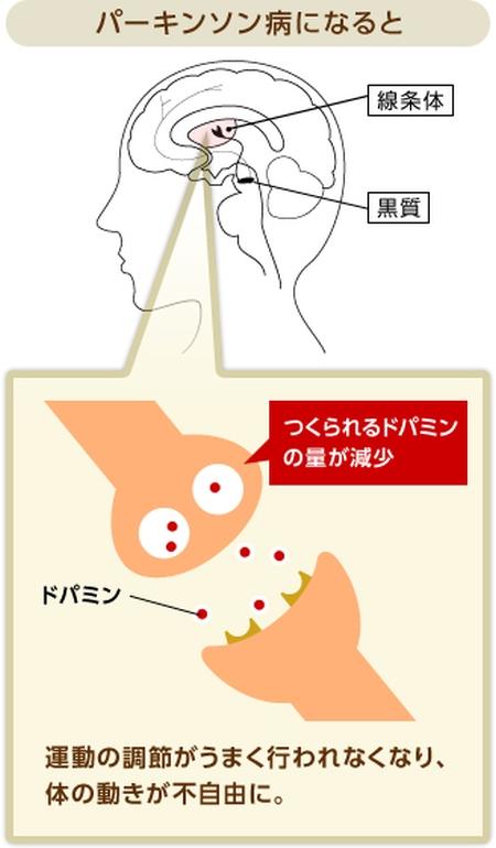 パーキンソン病-3