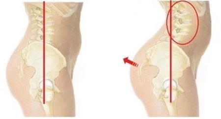 朝起きた時の腰痛の原因反り腰