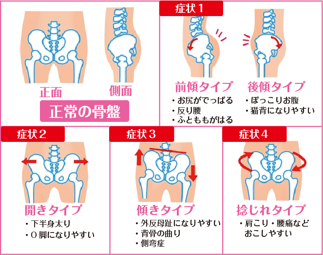 骨盤の歪み方4種類