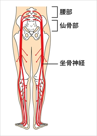 妊娠中や出産後の坐骨神経痛(足やお尻のシビレ・痛み)