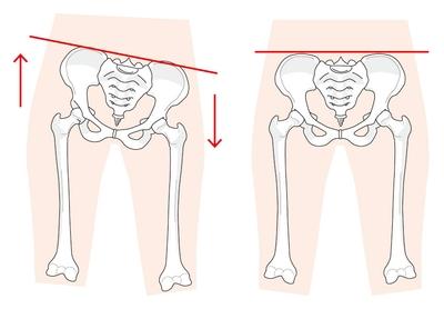 骨盤バランスが歪むと足の長さが変わります