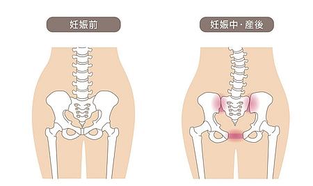 産後の恥骨痛の原因