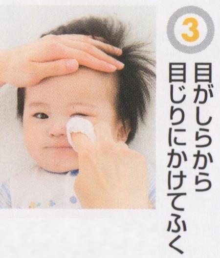 赤ちゃんの目のケア3