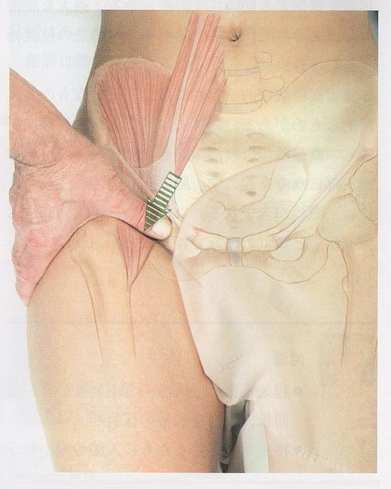 腸腰筋のマッサージ3