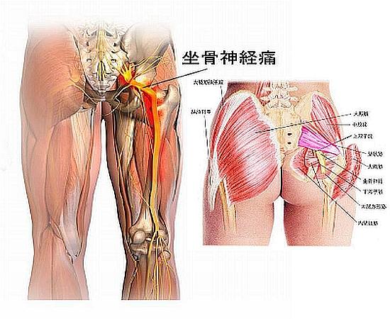 梨状筋の坐骨神経痛