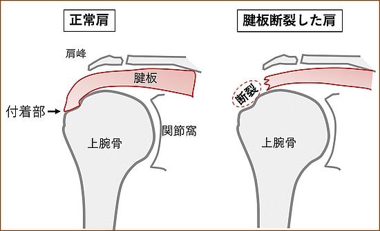 棘上筋の腱板断裂