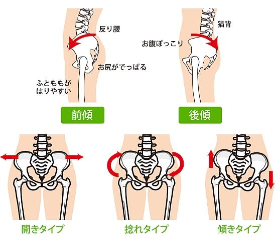 産後は骨盤が前傾、後傾、ねじれ、傾き、広がりの歪み