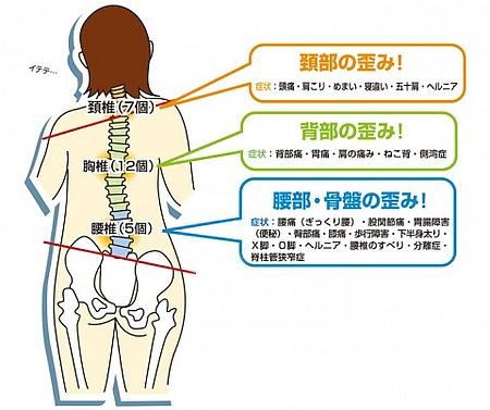 骨盤の歪み方は6種類