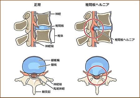 椎間板の潰れ方