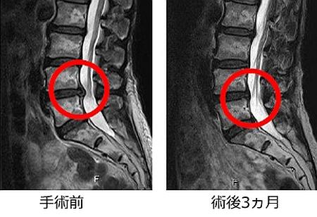 腰椎の椎間板ヘルニアの手術