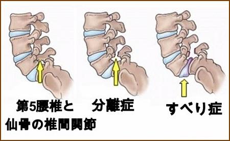 腰椎分離症とすべり症