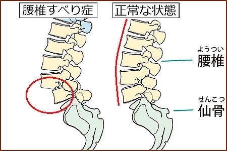 腰椎のすべり症