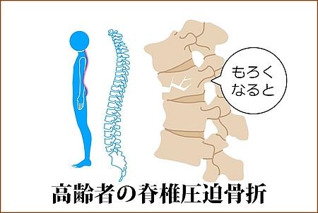 高齢者の脊椎圧迫骨折