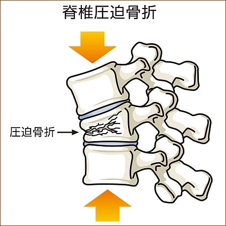 高齢者の脊椎圧迫骨折の原因