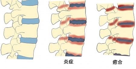 背骨のリュウマチ!強直性脊椎炎の症状と、その対処方法とは?
