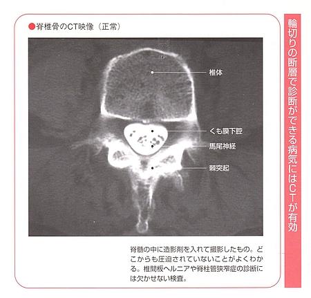 腰のCT検査画像