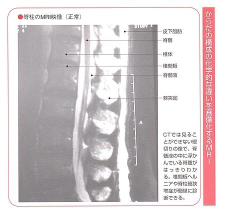 MRIで腰痛検査画像