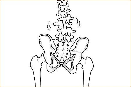 腰椎不安定症とは