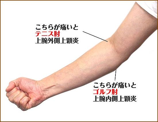 、テニス肘、四十肩、五十肩の予防