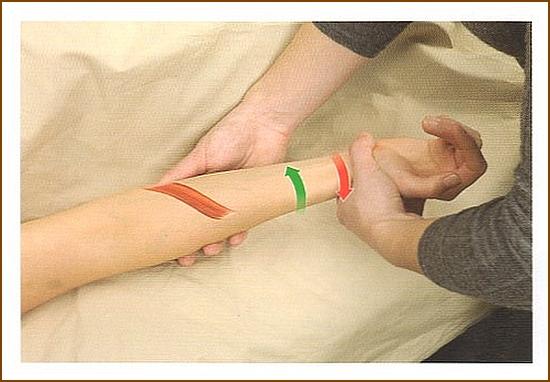 円回内筋の触診方法