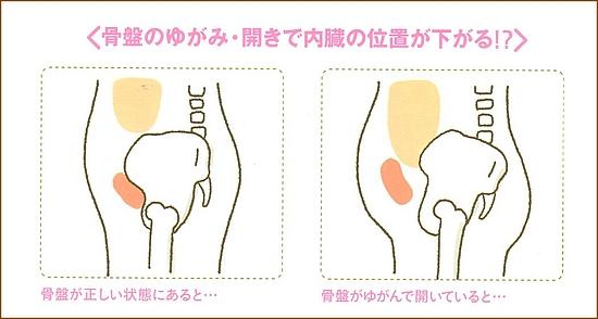下っ腹ぽっこり、下半身太り、大きなお尻は骨盤のゆがみや広がりが原因