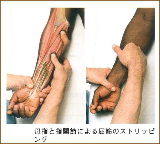 橈側手根屈筋の整体、マッサージやほぐし方2