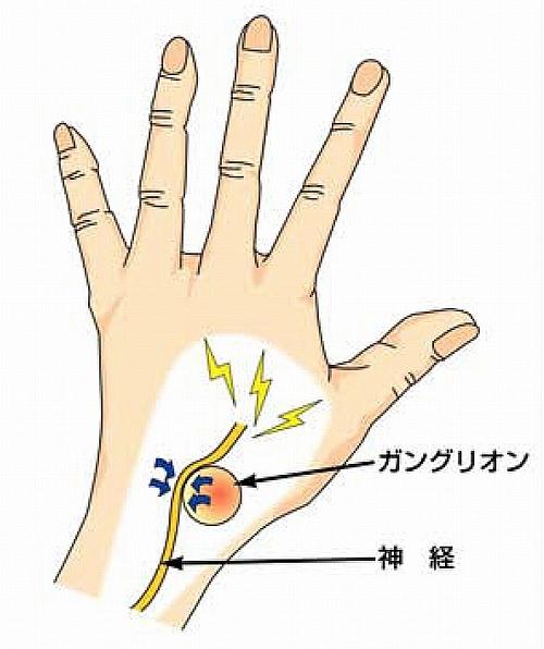 骨や筋肉神経に発症するガングリオン