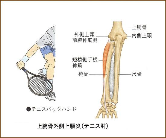 テニス肘の大きな特徴