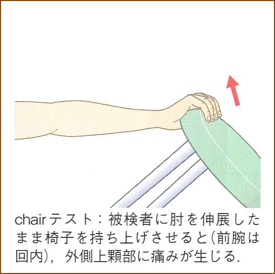 チェアーテスト(chair test)