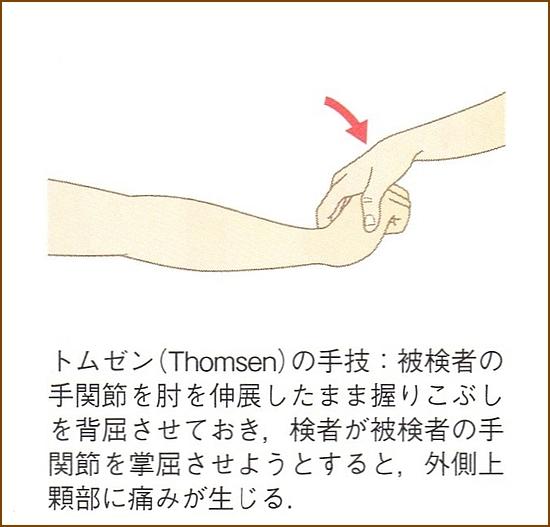 トムゼンの手技