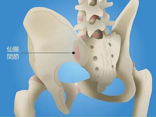 長引く腰痛仙腸関節炎