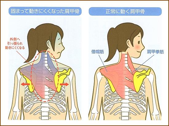 肩甲骨をはがすといいことがたくさん
