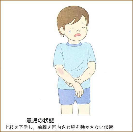 肘内障の症状
