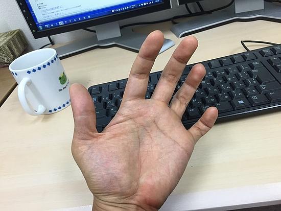 尺骨神経麻痺の症状