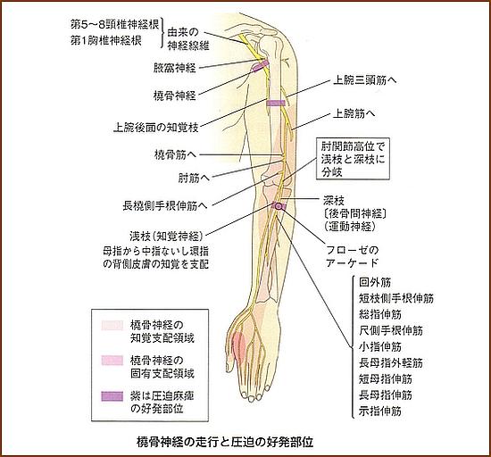橈骨神経麻痺の誘因