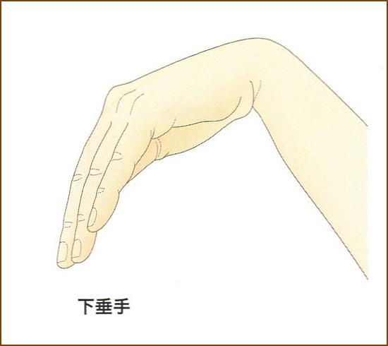 橈骨神経麻痺の下垂手