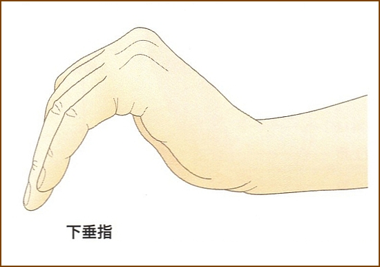 橈骨神経麻痺の下垂指